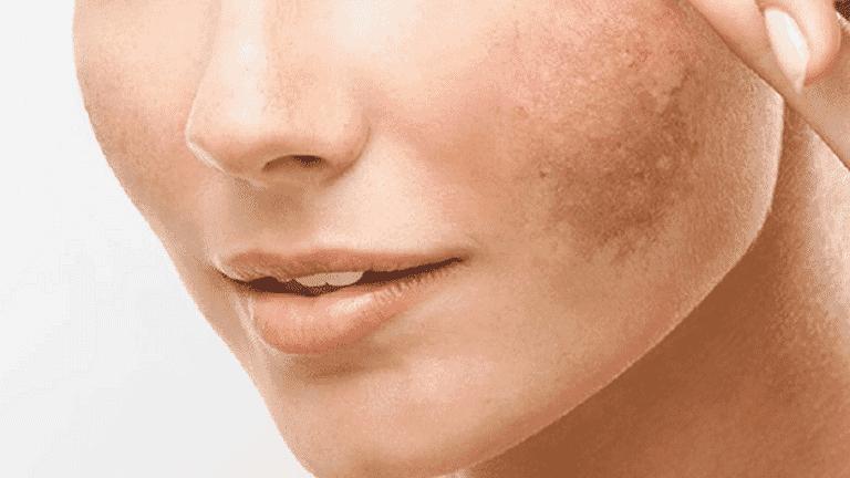 Tratamientos para la piel manchada